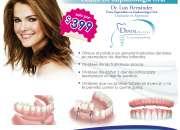 Implantes dentales desde 399 dolares